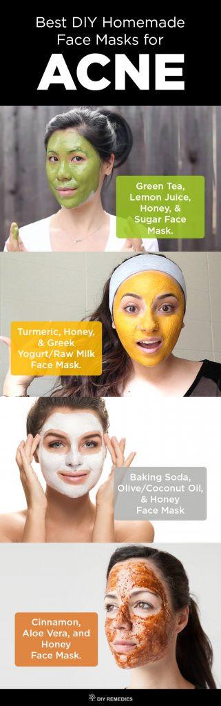DIY Acne Face Mask  6 Best DIY Homemade Face Masks for Acne