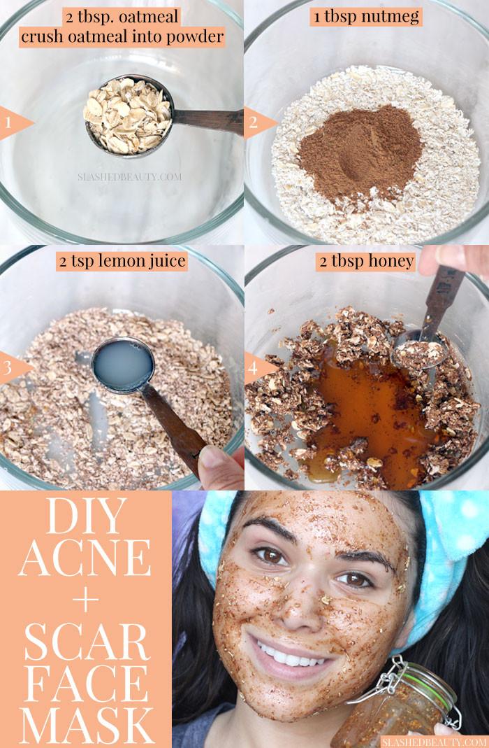 DIY Acne Face Mask  Best DIY Face Mask for Acne & Scars