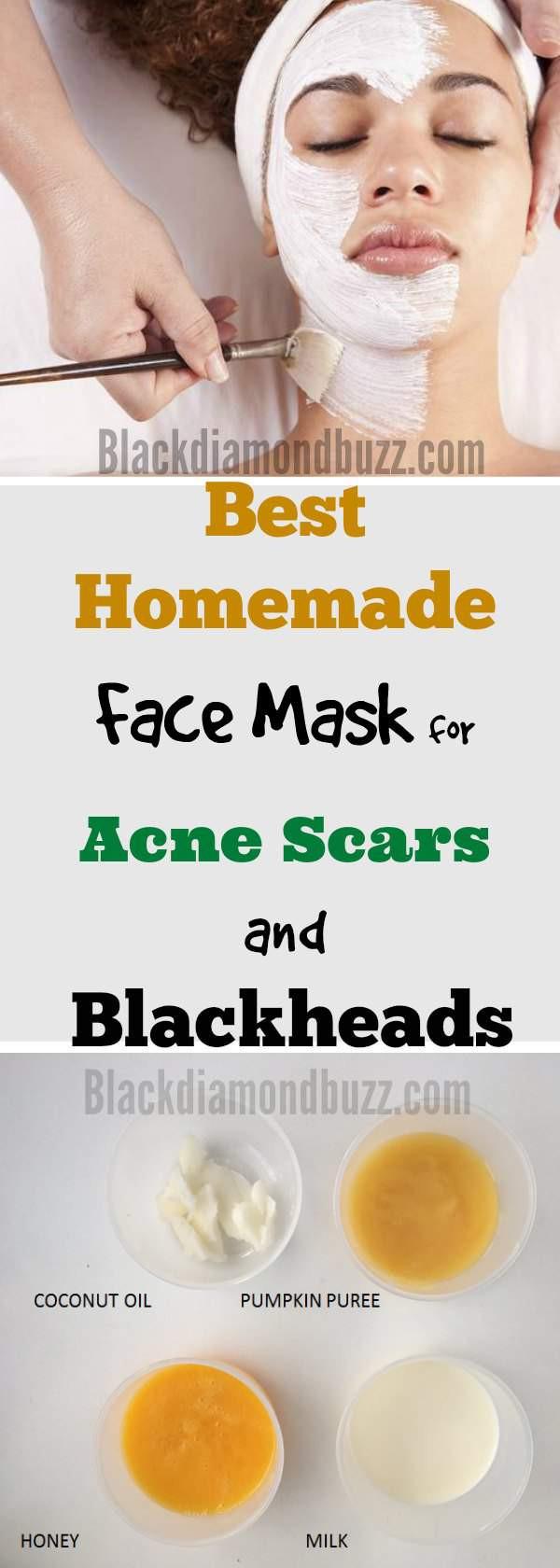 DIY Acne Face Mask  DIY Face Mask for Acne 7 Best Homemade Face Masks