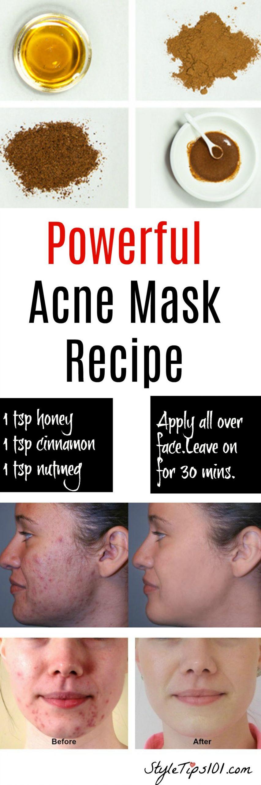 DIY Acne Face Mask  Homemade Natural Acne Mask